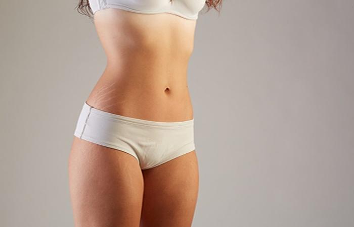 Tratamentos estéticos para remover estrias